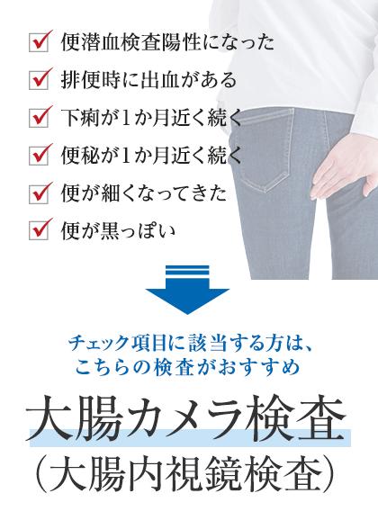 大腸カメラ検査(大腸内視鏡検査)